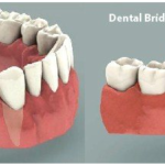 Dental Implants vs. Dental Bridges: Understanding the Pros and Cons