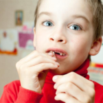 When do Children Lose their First Baby Tooth?