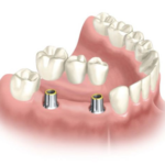Looking for Affordable Dental Implants in Los Angeles?