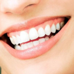 How Veneers Can Help You Upgrade Your Smile