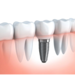 Dental Implants Help You Smile with Confidence
