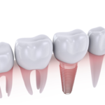 Benefits of Getting Dental Implants