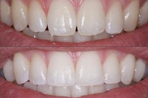 Dental Veneers Vs Cosmetic Bonding