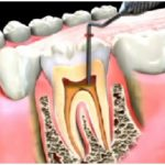 Do Root Canals Hurt?