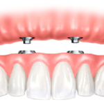 Implant Supported Dentures: Another Option