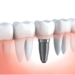 Utilizing Dental Implants to Enhance Your Quality of Life