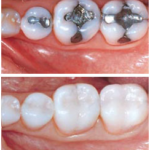Which is Better: White or Metal Fillings?