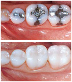 White Fillings or Metal Fillings