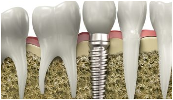 Dental Implants in Los Angeles