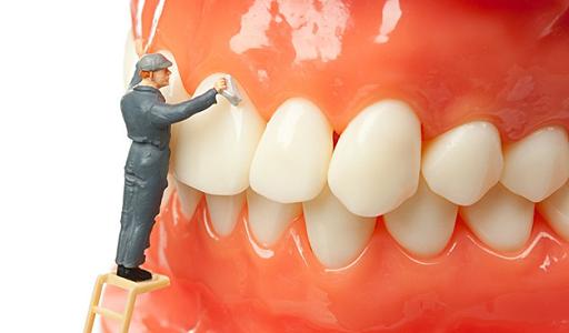 Dental Cleaning in Los Angeles