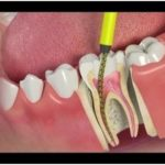 How to Tell if You Need A Root Canal