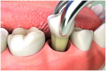 Pain After A Tooth Extraction