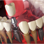 Learn about Tooth Replacement Options