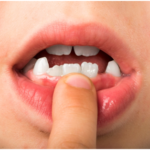 What is the Impact of a Missing Tooth?