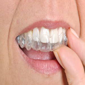 Invisalign Dentist in Los Angeles