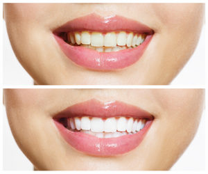 Teeth-Whitening-or-Bleaching