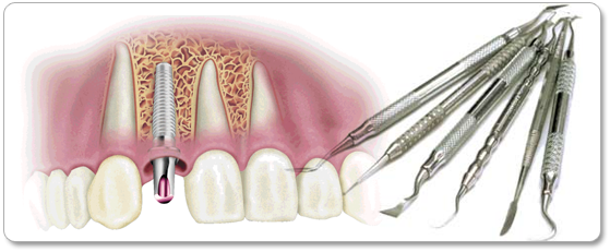 Oral Surgery Los Angeles