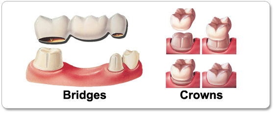 Dental Bridges & Crowns in Los Angeles