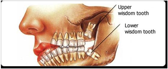 Wisdom Teeth Removal in Los Angeles