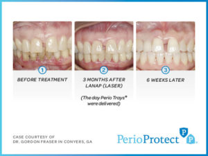 Perio Protect Trays – Case study 2