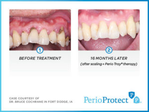 Perio Protect Trays – Case study 3