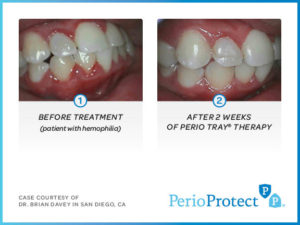 Perio Protect Trays – Case study 1