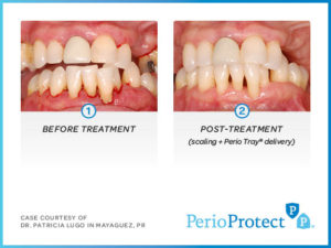Perio Protect Trays – Case study 4